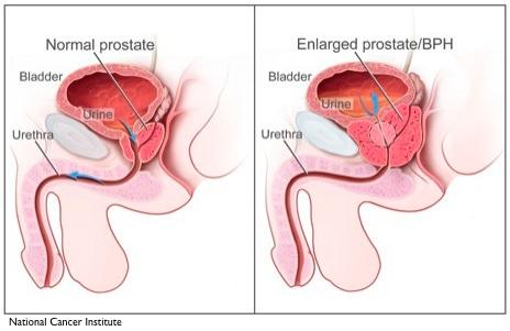 normal enlarged prostate