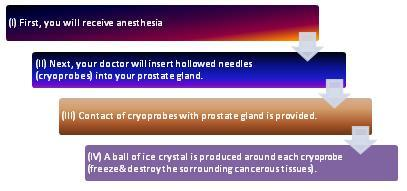 Cryosurgery for prostate cancer