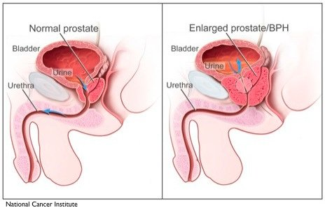 normal enlarged prostate