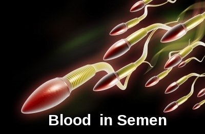 Blood In Semen.  Image courtesy of dream designs at FreeDigitalPhotos.net