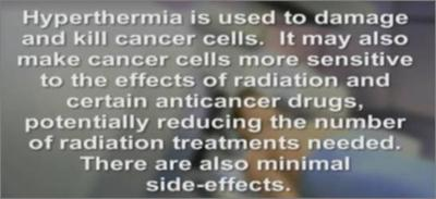 hyperthermia prostate cure