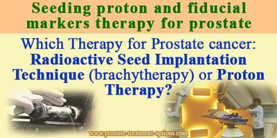 : Radioactive Seed Implantation Technique (brachytherapy) or Proton Therapy?